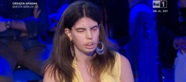 La professoressa irpina discriminata per il suo aspetto finisce in onda su Rai Uno: appello al Ministro Giannini