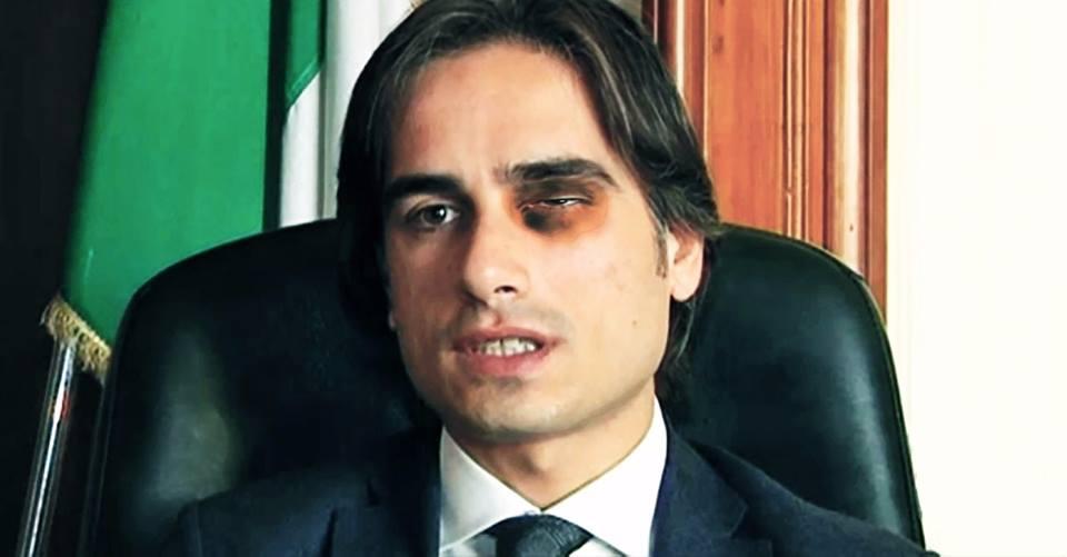 Reggio Calabria, sulla nomina del segretario esplode la polemicaDalila Nesci pubblica una foto di Falcomatà con un occhio nero