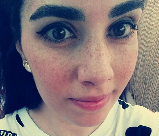 Vanessa si è arresa al cancro, la giovane vibonese aveva vissuto con i social la sua malattia