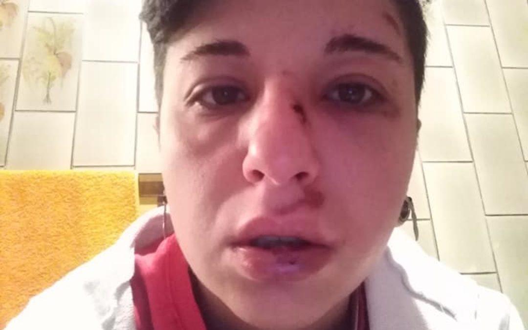 Giulia Ventura nella foto pubblicata su facebook dopo l'aggressione