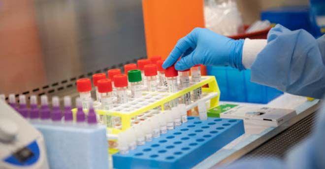Coronavirus/ Caserta, guariti 6 pazienti curati con Tocilizumab