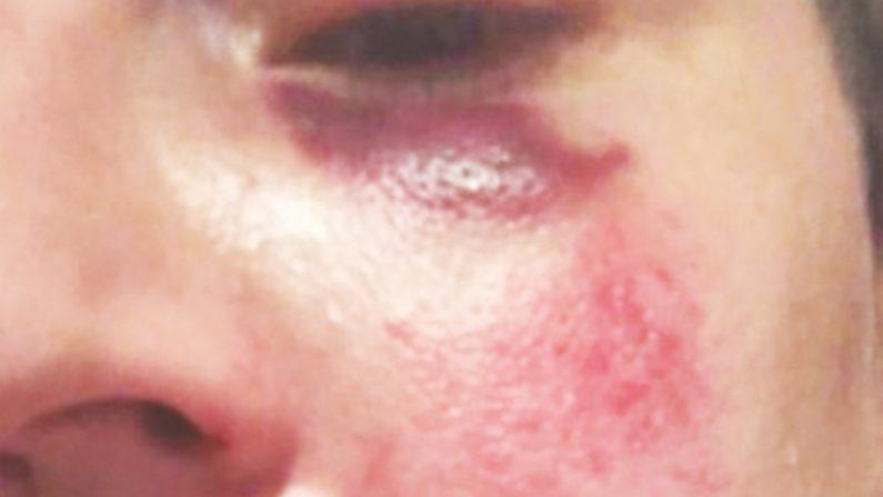 Brutale aggressione a una donna mentre era in vacanza sull'alto Tirreno cosentino
